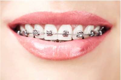 Different Wires for Braces